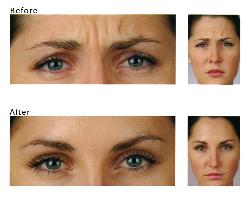 anti wrinkle before and after