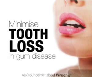 periochip minimise tooth loss