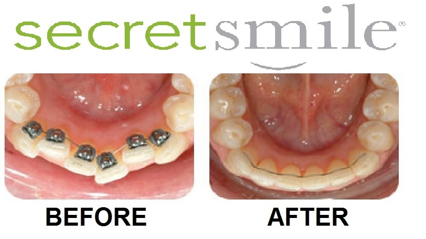 secret smile before and after