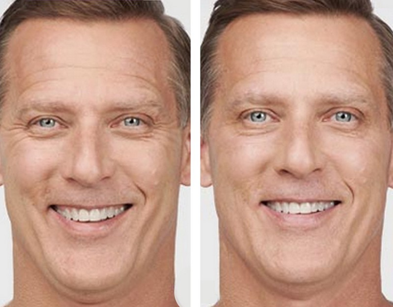 Botox before and after men
