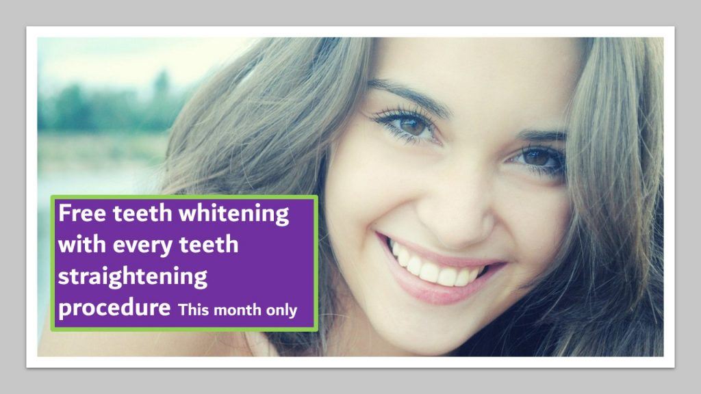 Free teeth whitening with every teeth straightening procedure this June 2019 | Dental Spa 25