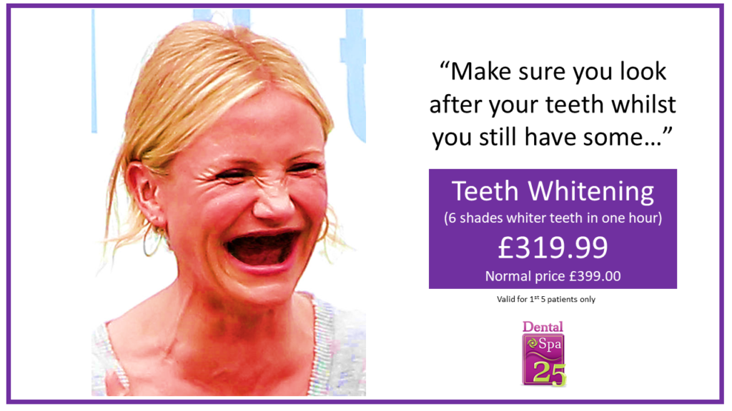 In-Surgery Tooth Whitening in Weston-Super-Mare, Somerset | Dental Spa 25