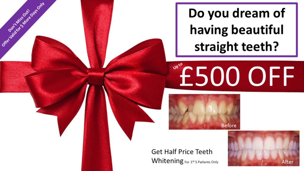 £500 off Clear Adult Braces / Half Price Teeth Whitening