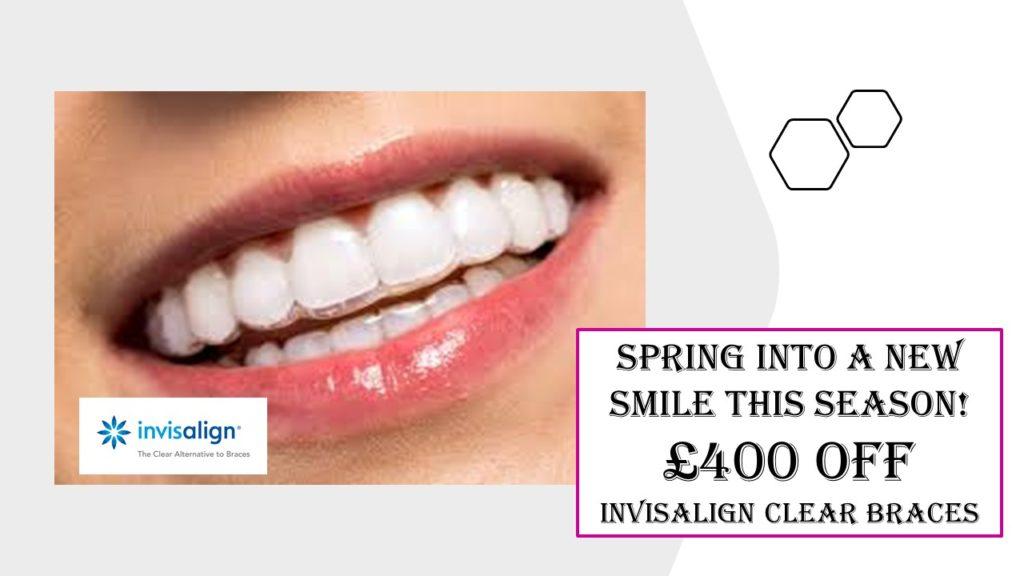 £400 Off Invisalign Clear Aligners - Dental Spa 25 Weston Super Mare
